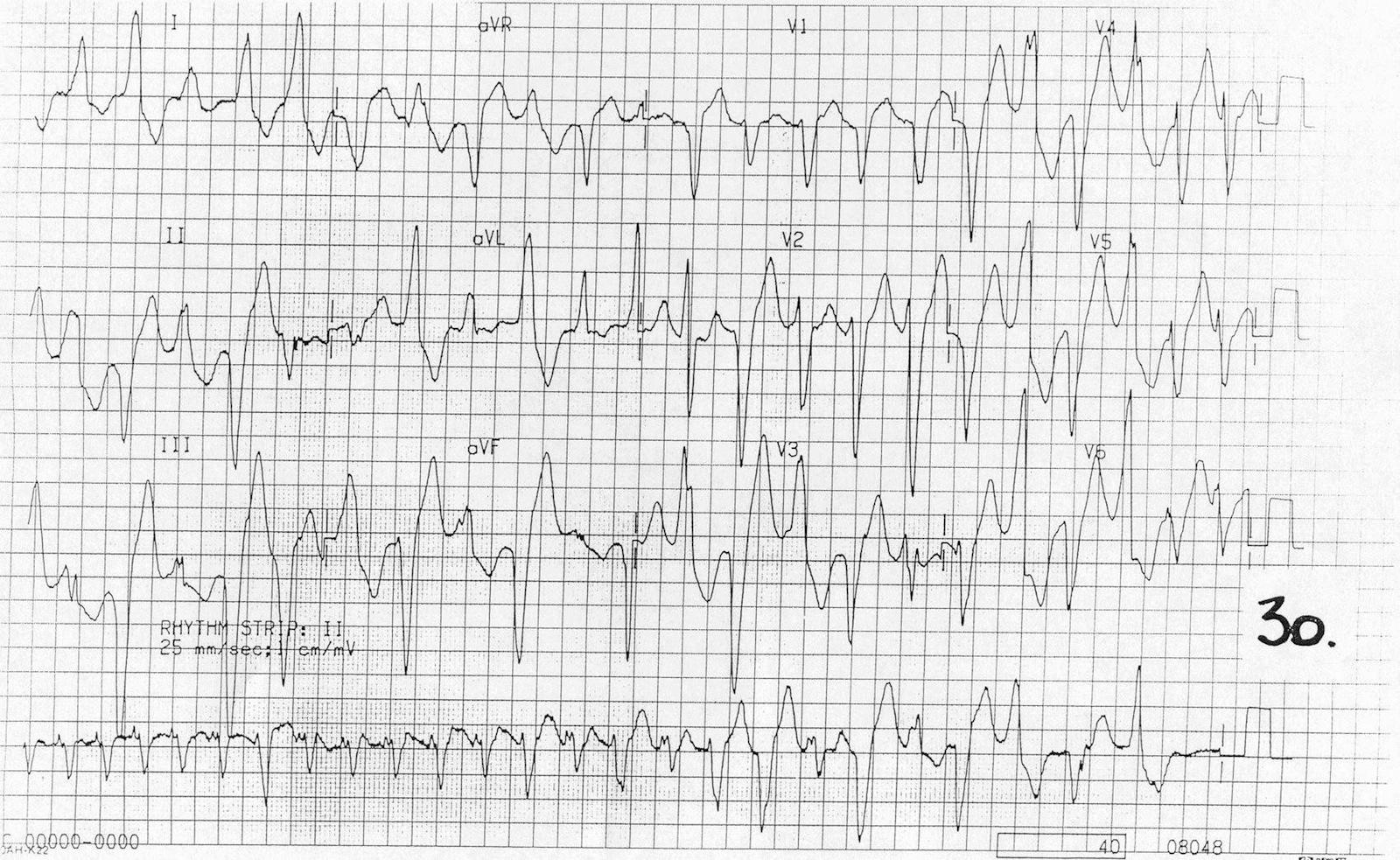 Digoksin zehirlenmesine ikincil olarak multifokal ektopi ve çift yönlü ventriküler taşikardi. Kaynak : lifeinthefastlane.com - ECG library