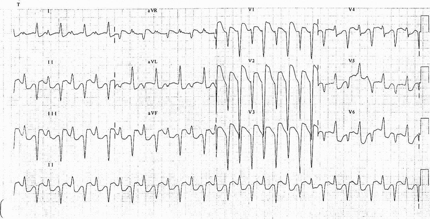Çift yönlü ventriküler taşikardi Kaynak : lifeinthefastlane.com - ECG library