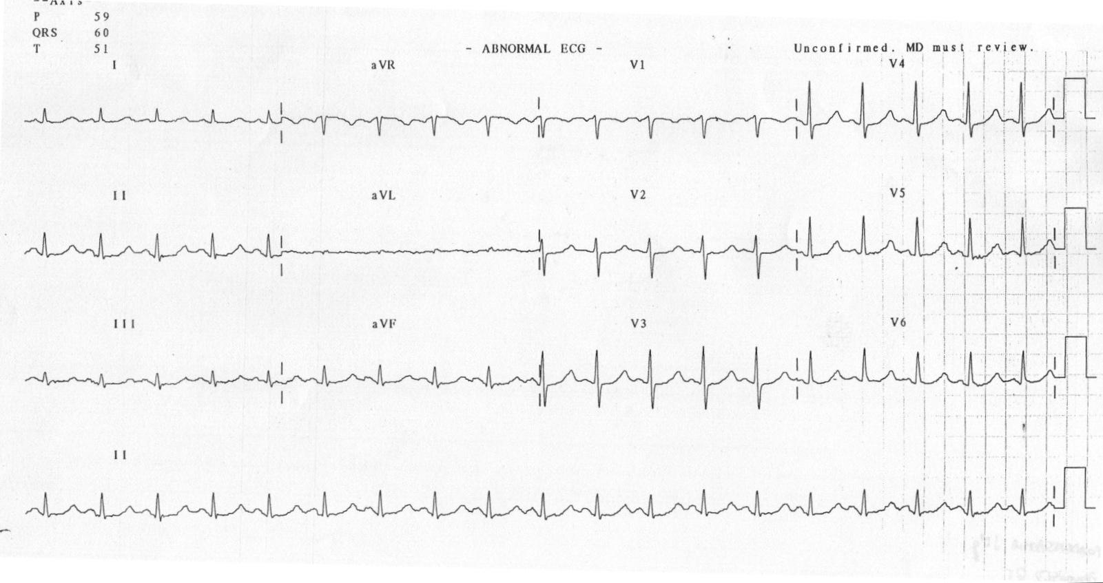 Uzun QTc'ye (510 ms) neden olan hipomagnezemi Kaynak : lifeinthefastlane.com - ECG library