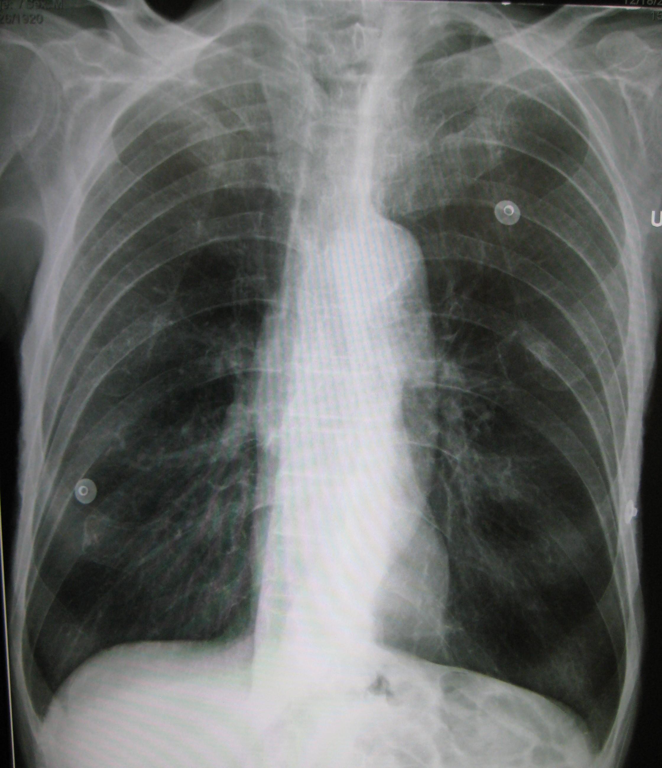 Akciğerlerin aşırı genişlemesi ve kalbin vertikale yönelmesi Kaynak : lifeinthefastlane.com - ECG library