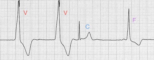 Ventriküler kompleksleri (V), capture vurusunu (C), füzyon vurusunu (F) gösteren AIVR Kaynak: lifeinthefastlane.com - ECG library