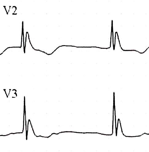 Hipotermide ST elevasyonu gibi görünen J dalgaları Kaynak: lifeinthefastlane.com - ECG library