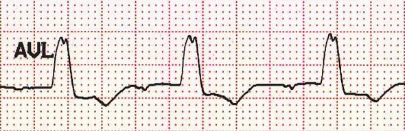 'M'-şekilli QRS kompleksi Kaynak : lifeinthefastlane.com - ECG library