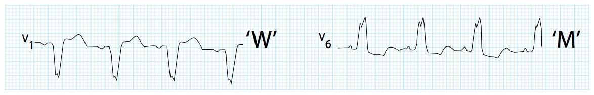 V1'de dominant S dalgası ile birlikte, V6'da geniş, çentikli ('M' şekilli) R dalgası. Kaynak : lifeinthefastlane.com - ECG library