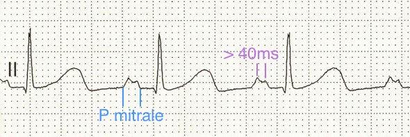 II. derivasyonda, iki tepesi arası süre > 40 ms olan, geniş ( >110 ms), çift başlı P dalgaları (P mitrale) Kaynak: lifeinthefastlane.com - ECG library