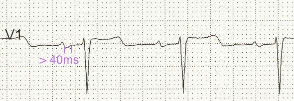 V1'de 40 ms süresinden uzun P dalgası terminal kısmı Kaynak: lifeinthefastlane.com - ECG library