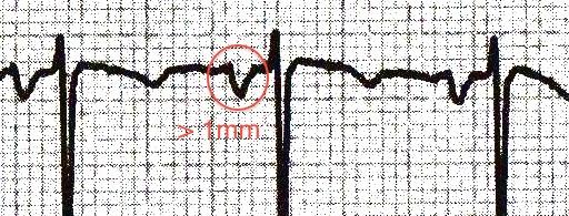 V1'de terminal kısım 1 mm'den daha derin P dalgaları Kaynak: lifeinthefastlane.com - ECG library