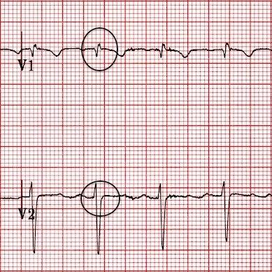 V1-2'deki yalancı R' dalgaları düzelmiş. Kaynak : lifeinthefastlane.com - ECG library