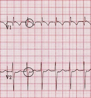 V1-2'de yalancı R' dalgaları Kaynak : lifeinthefastlane.com - ECG library