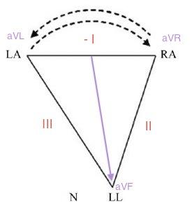 RA-LA-reversal-diagram2
