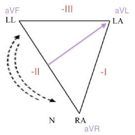RA-LL-reversal-diagram