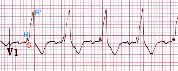 V1'de tipik RSR' patterni ('M' şekilli QRS) Kaynak : lifeinthefastlane.com - ECG library