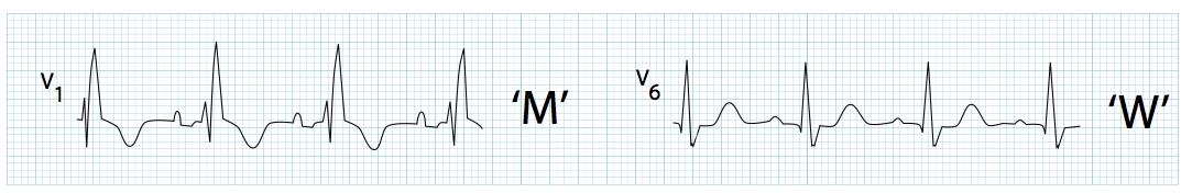 """V6'da geniş, uzamış S dalgası (""""W"""" patterni) ile birlikte V1'de uzun R' dalgaları (""""M"""" patterni). Kaynak : lifeinthefastlane.com - ECG libary"""