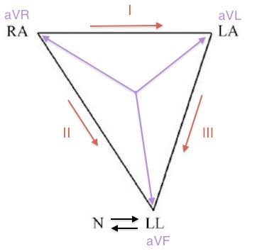 RL-LL-diagram