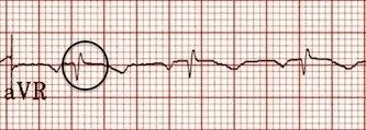 aVR'de retrograd P dalgaları ortadan kalkmış. Kaynak : lifeinthefastlane.com - ECG library