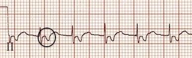 II. derivasyonda ters P dalgaları Kaynak : lifeinthefastlane.com - ECG library