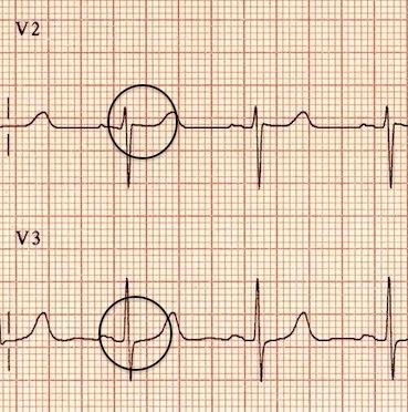 Retrograd P dalgaları sonlanmış. Kaynak : lifeinthefastlane.com - ECG library