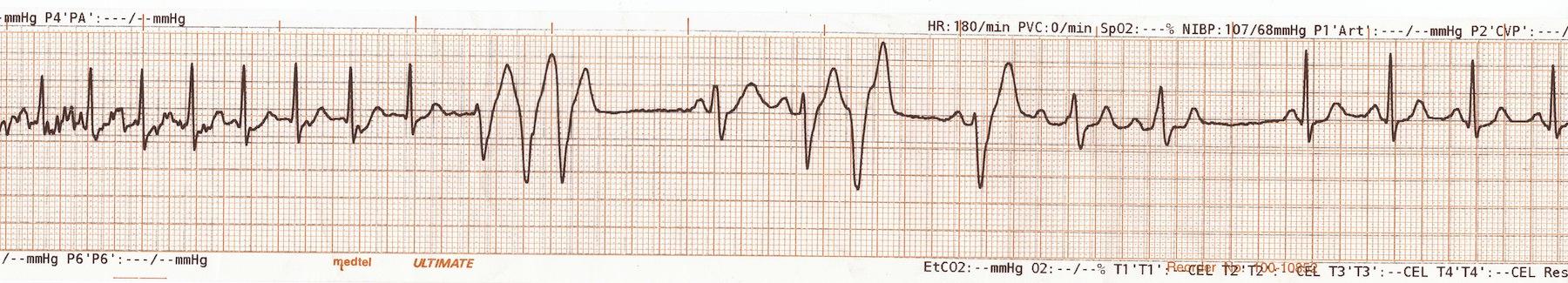 Bolus adenozinden sonra sinüs ritmine dönen AVNRT Kaynak: lifeinthefastlane.com - ECG library