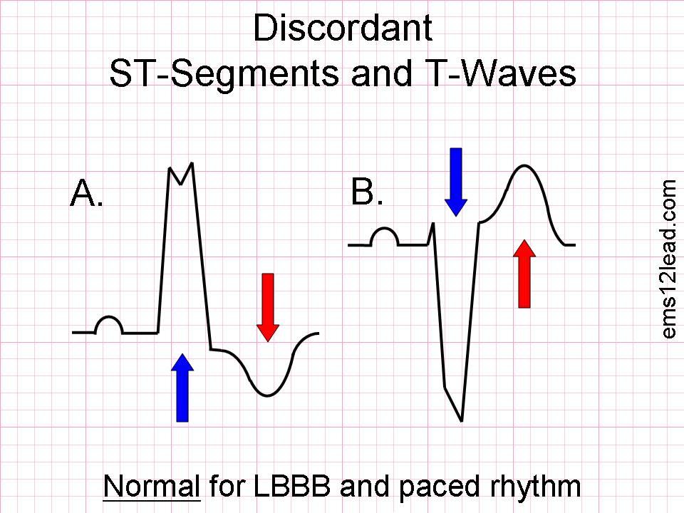 T-wave_discordance