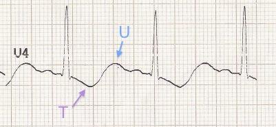 Hipokalemide T dalga inversiyonu ve belirgin U dalgaları Kaynak : lifeinthefastlane.com - ECG library