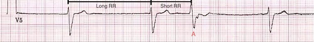 Tipik Ashman aberransı: Uzun RR aralığını kısa RR aralığı takip ettiğinde aberran iletim oluşur. Kaynak : lifeinthefastlane.com - ECG library