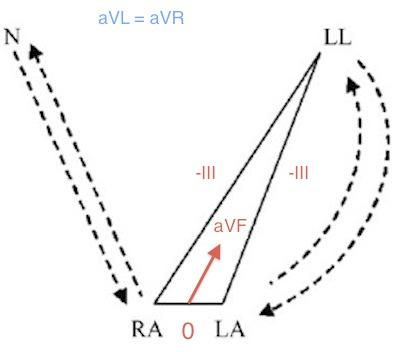 bilateral-arm-leg-reversal-diagram