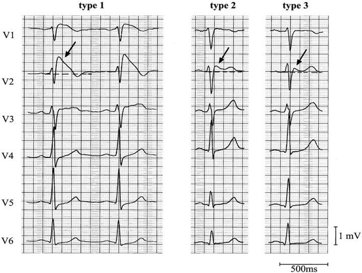 Farklı Brugada EKG patternlerinin karşılaştırılması Kaynak : lifeinthefastlane.com - ECG library