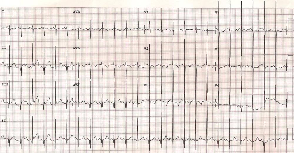 Johnson Francis for Cardiophile MD Kaynak için resmi tıklayınız.