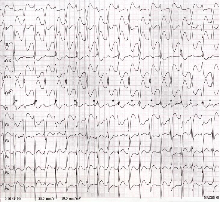 Digoksin toksisitesine bağlı bir diğer çift yönlü ventriküler taşikardi örneği. Kaynak : lifeinthefastlane.com - ECG library