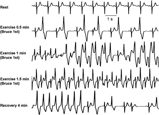 CPVT'li hastada egzersiz stres testi. Egzersiz boyunca giderek kötüleşen ventriküler aritmiler gözlemlenmektedir. Yaklaşık 120 vuru/dakika hızındaki sinus ritmini takiben 1 dakikalık egzersiz sonrası  tipik çift yönlü ventriküler taşikardi gelişmektedir. İyileşme esnasında aritmiler hızlıca düzelmektedir. Kaynak : lifeinthefastlane.com - ECG library