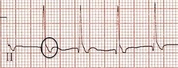 II. derivasyonda ters retrograd P dalgaları. Kaynak : lifeinthefastlane.com - ECG library