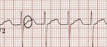 V2'de yukarı dönük retrograd P dalgaları. Kaynak : lifeinthefastlane.com - ECG library