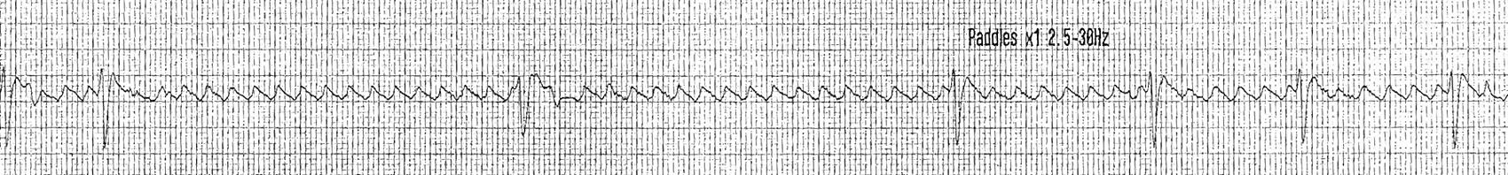 Adenozin ile açığa çıkan flutter dalgaları Kaynak: lifeinthefastlane.com - ECG library