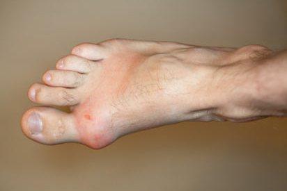 Photo of Akut Gut Artriti