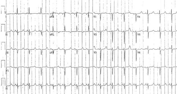 Uzun QTc'ye (510 ms) neden olan hipokalsemi Kaynak : lifeinthefastlane.com - ECG library