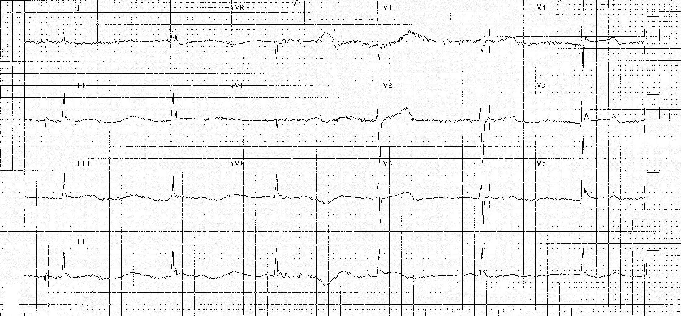 Bu EKG hipoterminin klasik özelliklerini göstermektedir : bradikardi, Osborn dalgaları ve titreme artefaktı