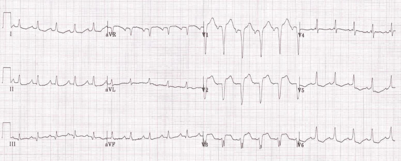 İnkomplet sol dal bloğu (QRS süresi 110 ms). Kaynak : lifeinthefastlane.com - ECG library