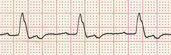 Çentikli R dalgası Kaynak : lifeinthefastlane.com - ECG library