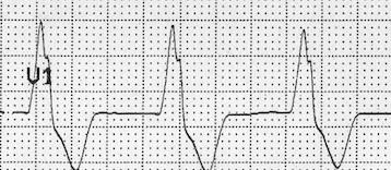 Solu daha uzun tavşan kulağı = QRS kompleksleri ventriküler orijinli Kaynak: lifeinthefastlane.com - ECG library