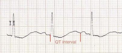 Hipokalemi ile birlikte belirgin uzun QT aralığı (gerçekte T-U füzyonu) Kaynak : lifeinthefastlane.com - ECG library