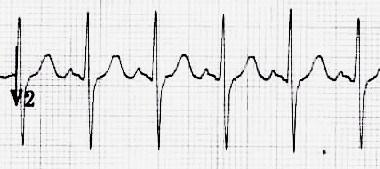 p-pulmonale-lead-v2