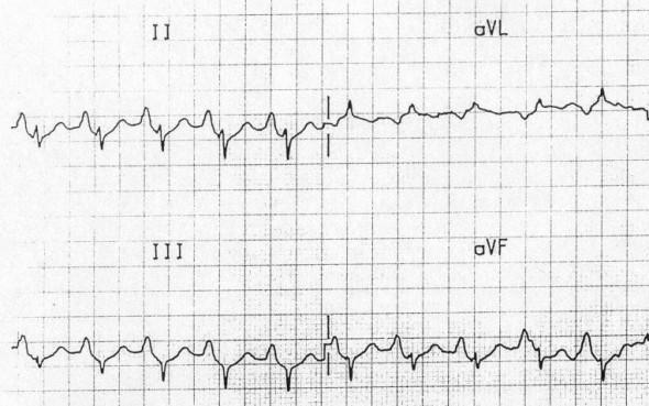 Sağ atriyal genişleme: II, III, aVF'de P dalga amplitüdü > 2.5 mm Kaynak: lifeinthefastlane.com - ECG library