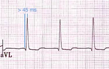 aVL'de > 45 ms uzamış R-dalga pik süresi (= QRS başlangıcından R dalga pikine kadar geçen süre). Kaynak : lifeinthefastlane.com - ECG library