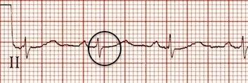 II. derivasyondaki retrograd P dalgaları ortadan kalkmış. Kaynak : lifeinthefastlane.com - ECG library