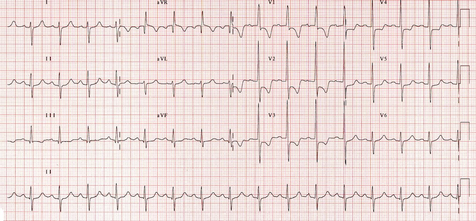 Sağ ventriküler hipertrofi Kaynak: lifeinthefastlane.com - ECG library