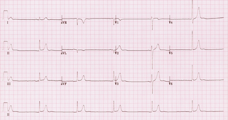 Hipotermiye ikincil belirgin sinüs bradikardisi (30 vuru/dak). Kaynak : lifeinthefastlane.com - ECG library
