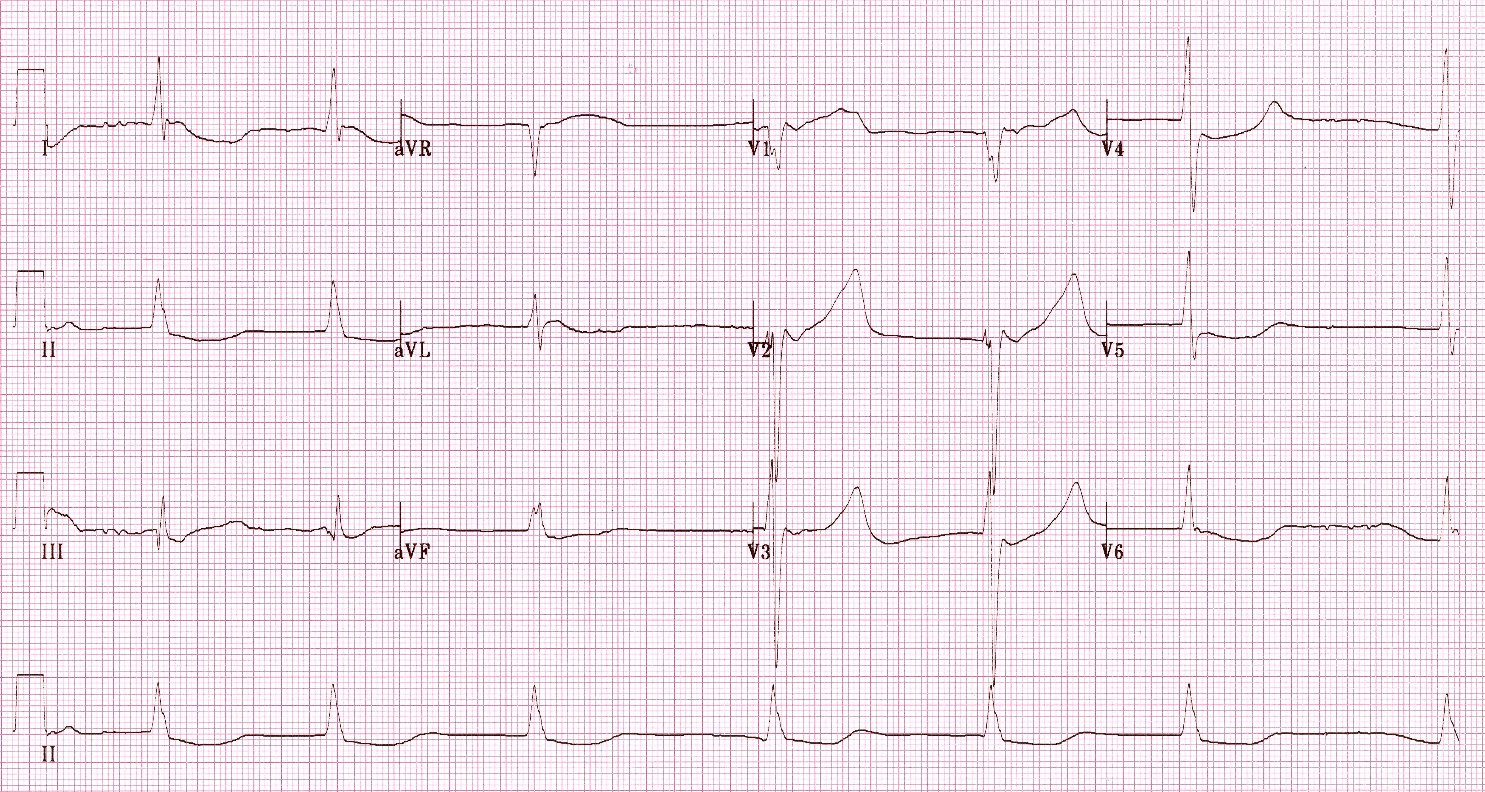 Hipotermiye bağlı yavaş ventrikül yanıtlı atriyal fibrilasyon. Kaynak : lifeinthefastlane.com - ECG library