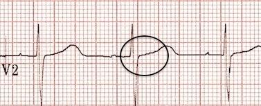 V2'de retrograd P dalgaları ortadan kalkmış. Kaynak : lifeinthefastlane.com - ECG library