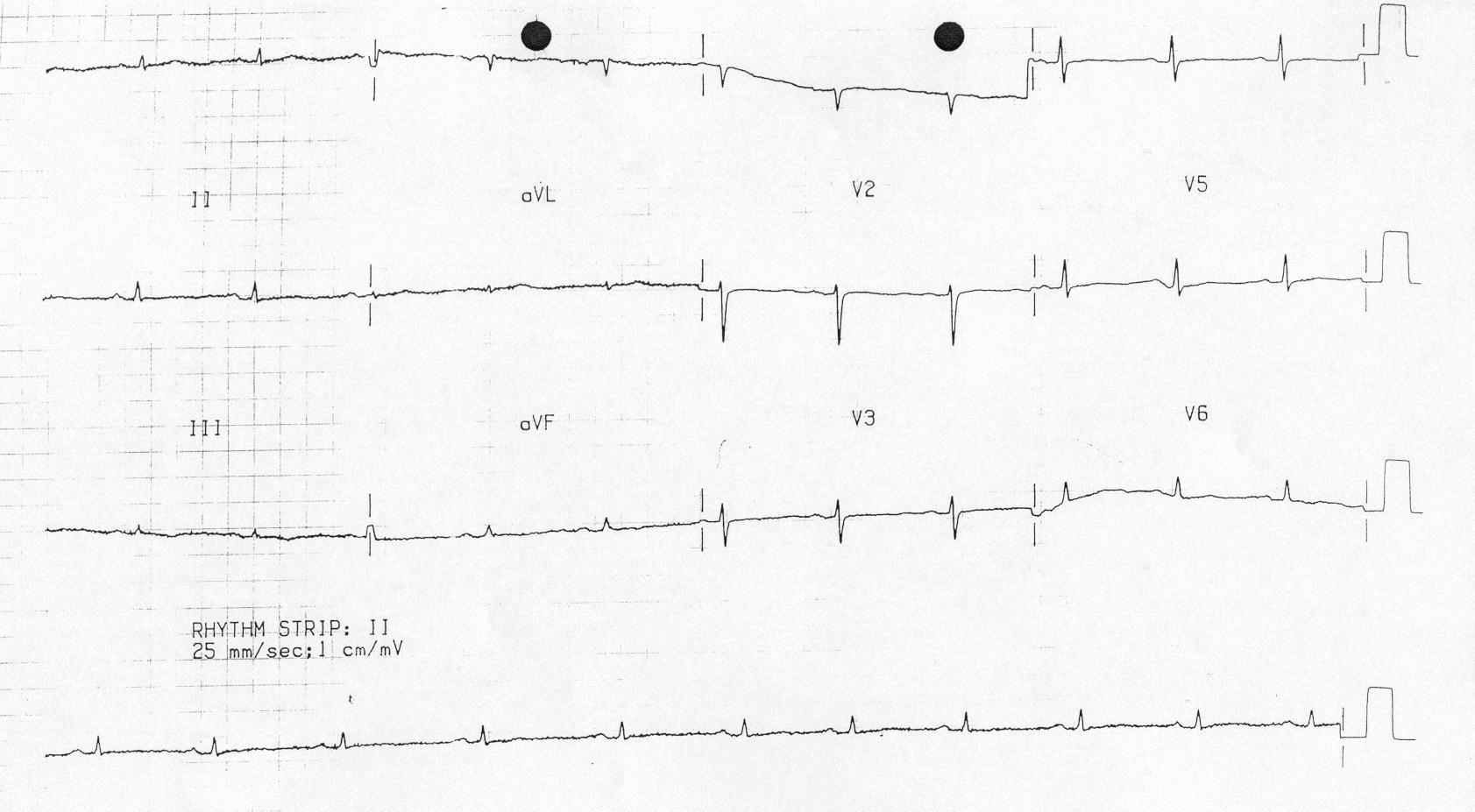 Miksödeme bağlı düşük QRS voltajı Kaynak : lifeinthefastlane.com - ECG library