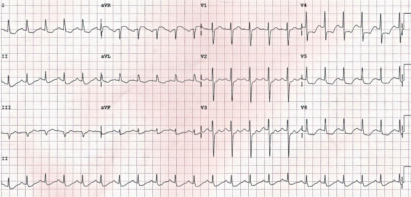 LMCA tıkanıklığına bağlı yaygın subendokardiyal iskemi. Kaynak : lifeinthefastlane.com - ECG library